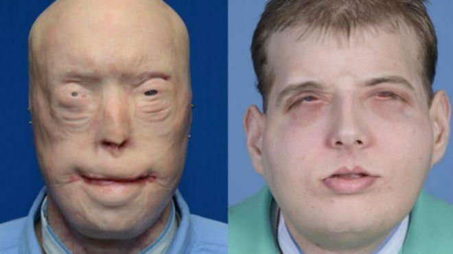 تصویر بیمار پاتریک هاردیسون قبل و بعد از عمل جراحی